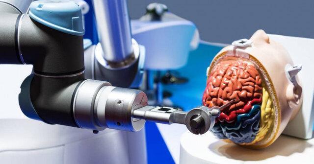 نخستین جراحی آنوریسم مغزی توسط ربات انجام شد