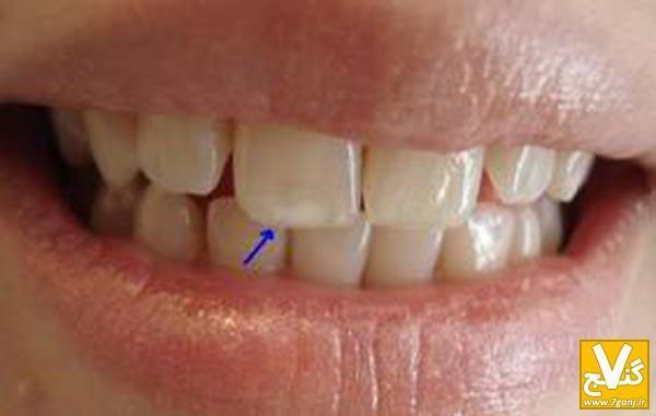 چطور می توان دندان های زیبا و سفید داشت؟